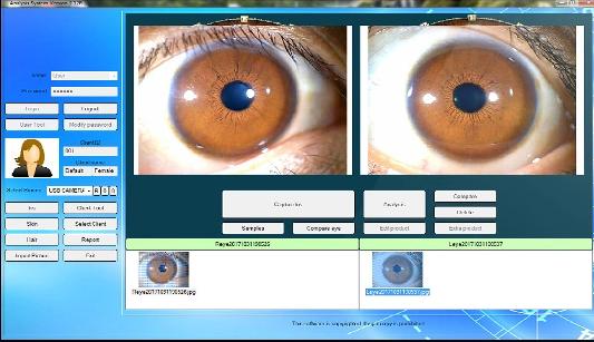 دستگاه عنبیه شناسی از روی چشم